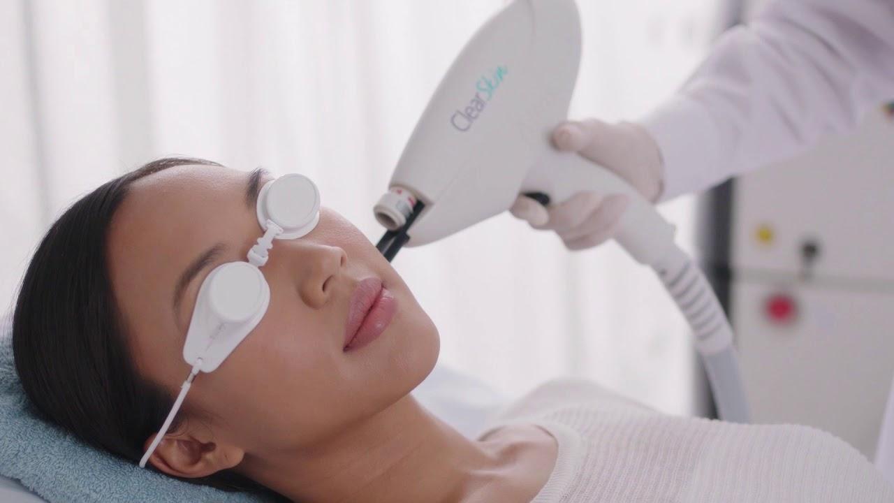 ClearSkin™ Acne Treatment